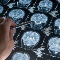 Misdiagnosed Brain Cancer