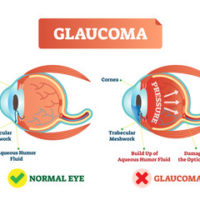 images of normal eye and one with Glaucoma